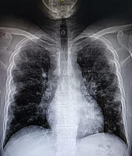 mi radiografía de tórax durante el COVID